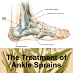 mp_ankle