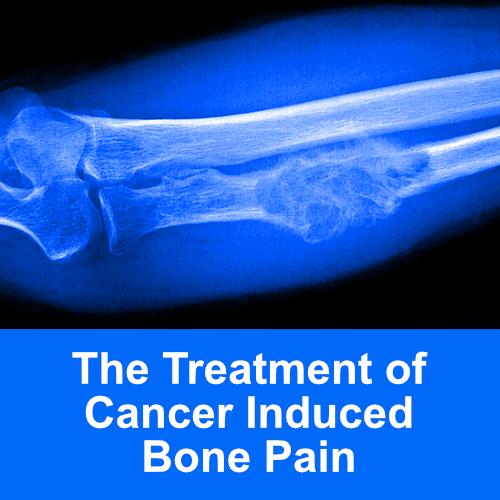 cancer bone pain