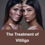 mp_vitiligo